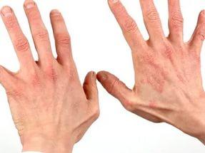 Аллергия при сахарном диабете