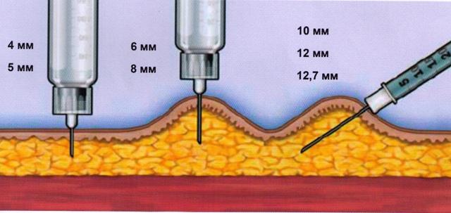 Техника инсулиновых уколов